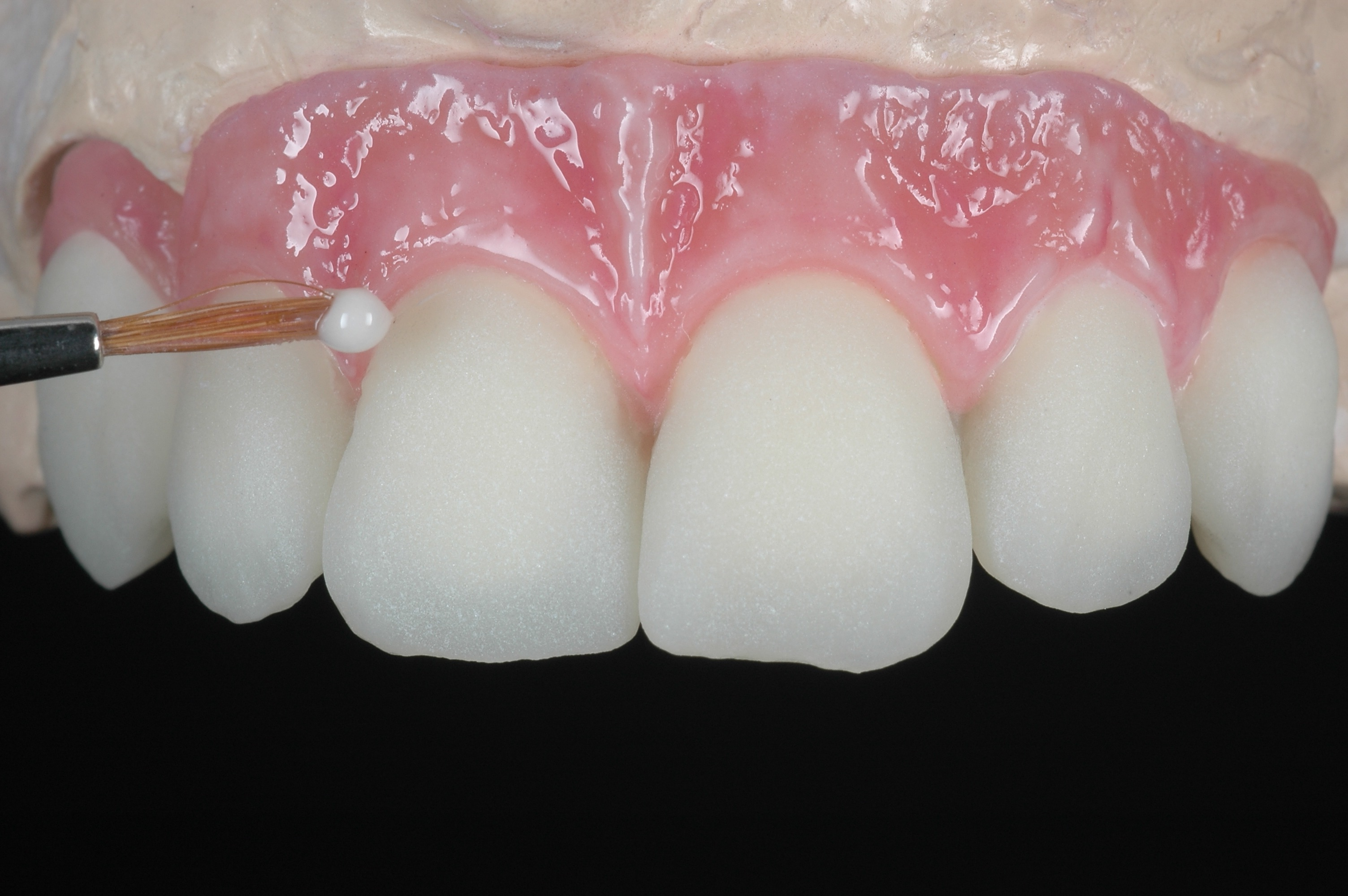 Gc Europe Initial Lustre Pastes Nf 3 Dimensional